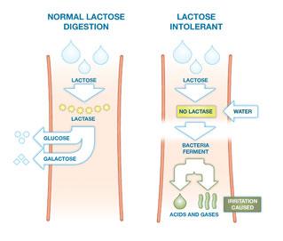 lactose_intolerance_diagram